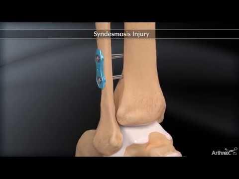Osteocondrosi del trattamento cervicale e toracico sintomi della colonna vertebrale