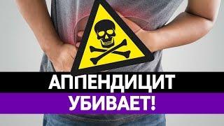 ОСТРЫЙ АППЕНДИЦИТ СМЕРТЕЛЕН. Симптомы, признаки, причины и удаление аппендикса!