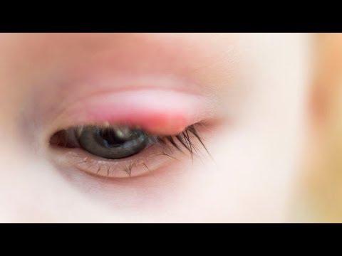 Rosszabb látás a szemcseppektől