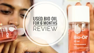 Bio Oil Review _ Does Bio Oil Work on Stretch Marks & Scars? | SuperWowStyle