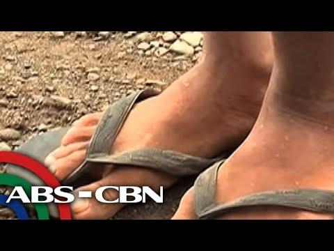 Pamamaraan at purification pamamaraan katawan mula sa mga parasito