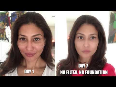 Cosmetology facial micro-alon