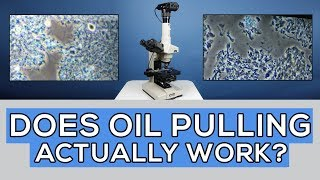 Oil Pulling for 35 Days: Did It Cure Gum Disease? Microscope Analysis🔬