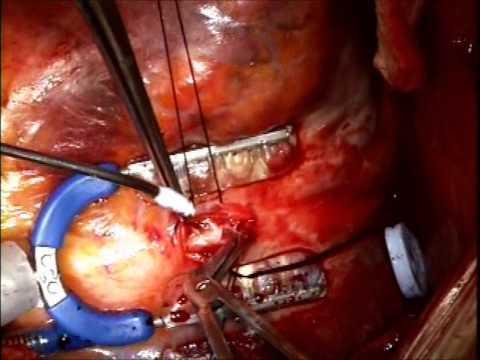 Chirurgiczna rewaskularyzacja  naczyń wieńcowych u nieoperacyjnego pacjenta z porcelanową aorta