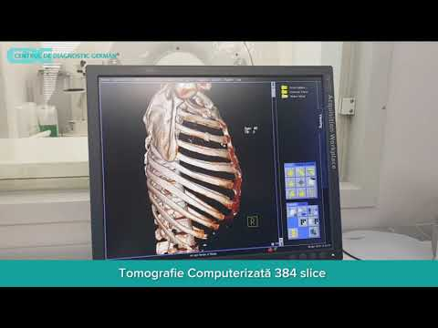 Artroza avito a genunchiului