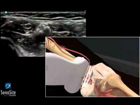 Perché ferire i gomiti delle mani