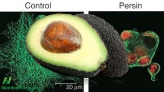 Are avocados health-promoting?