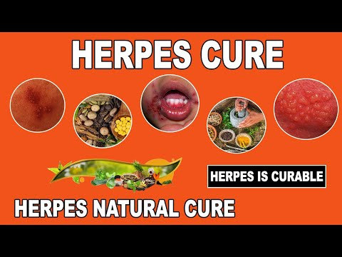 Herpes Cure 2017 |Best Natural Herpes Cure | herpescure32