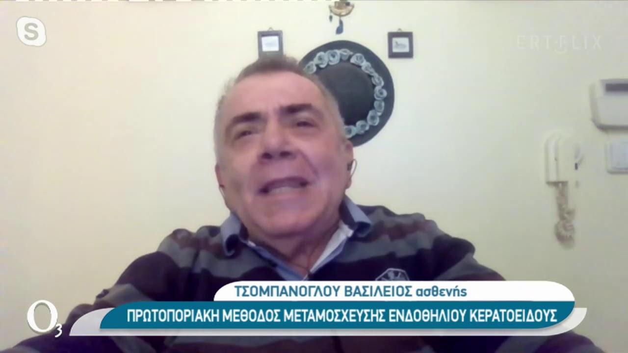 Πρωτοποριακή μέθοδος μεταμόσχευσης κερατοειδούς    16/12/2020   ΕΡΤ