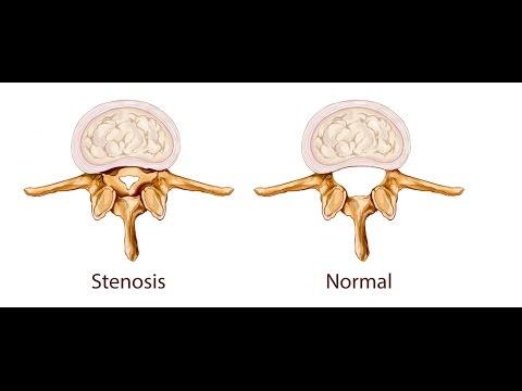Esercizi del macellaio a osteochondrosis cervicale