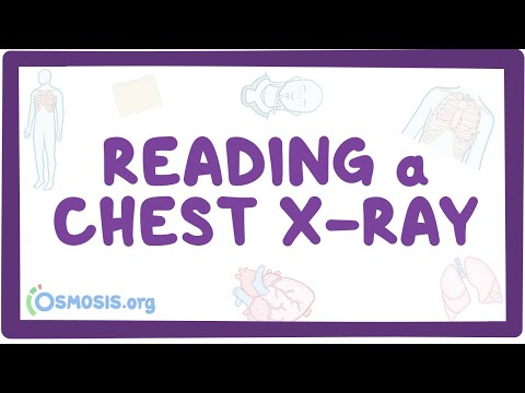 Reading a chest X-ray - YouTube