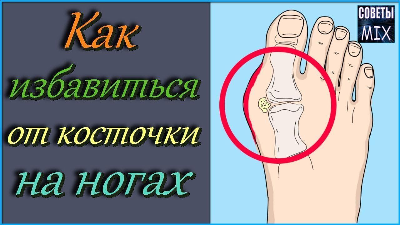 Как избавиться от косточки на большом пальце. 3 эффективных способа народной медицины