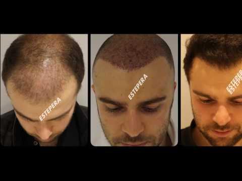 Naturale significa contro una perdita di capelli