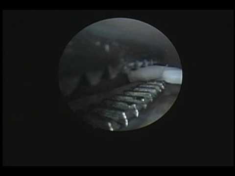 Il nodo di linfa su un collo ha infiammato i danni di nodo di linfa