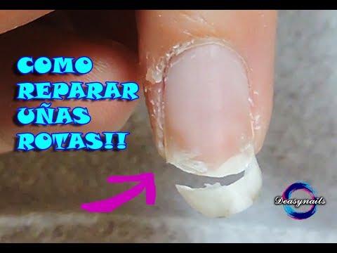 Que rápidamente y effectivamente sanar el hongo sobre las uñas de los pies