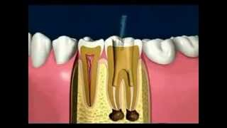 Endodoncia Madrid tratamiento pulpar - Clínica Dental Bonadent