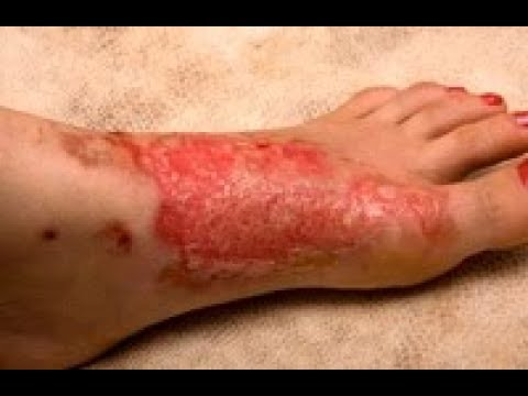 Procedura pigmentacji skóry