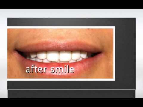 مركز تصميم ضحكة الأسنان