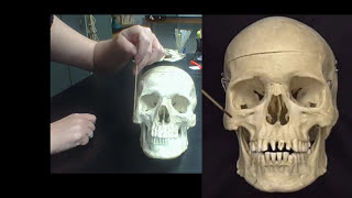 Detailed Anatomy of the Human Skull! The cranial, and facial bones and structures! New and Improved!