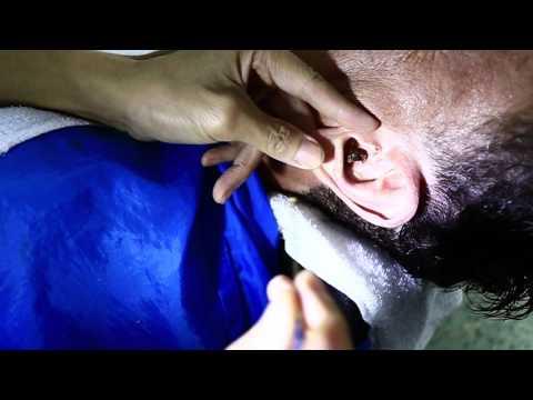 โรคผิวหนังภูมิแพ้อาการบวมน้ำที่ใบหน้า