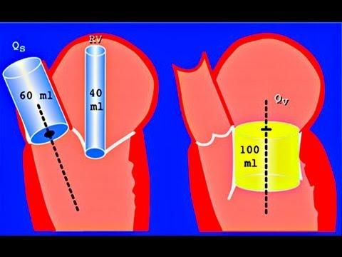 Trattamento da trombosi di sanguisughe