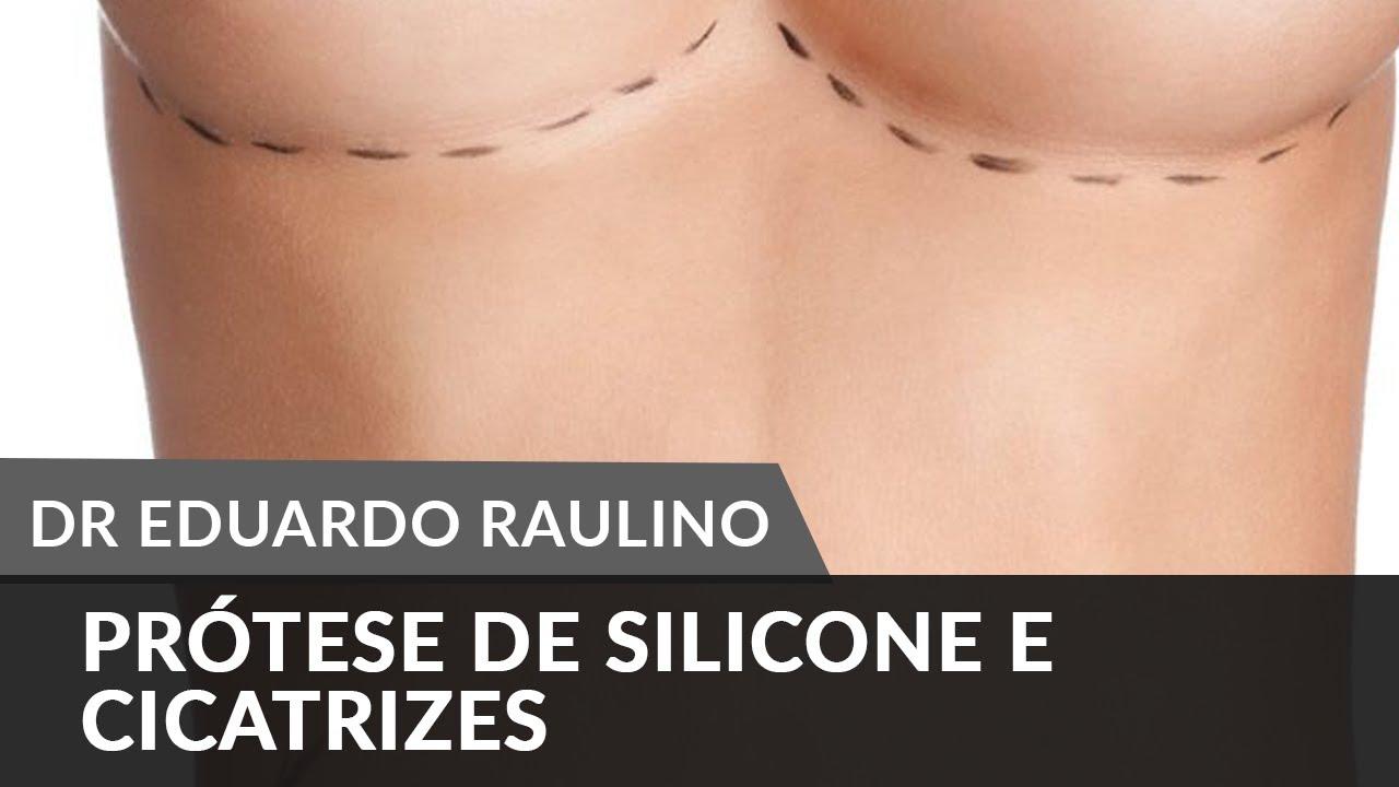 praotese-de-silicone-cicatrizes