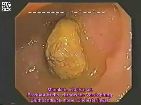 Die ergebnisreichen Präparate für die Behandlung der Würmer