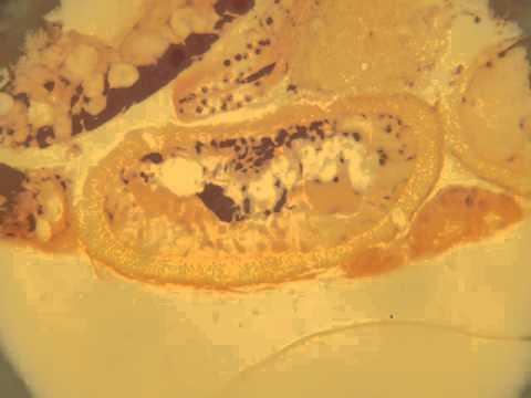 Pinworm lárva a mikroszkóp alatt