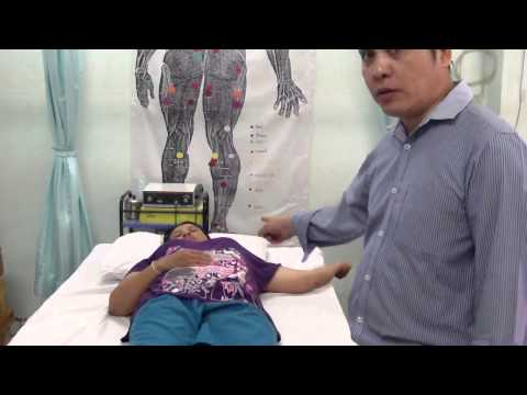 เส้นเลือดขอดอาการกระเพาะปัสสาวะในผู้หญิง