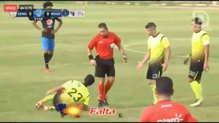 Motagua VS Real De Minas EN VIVO