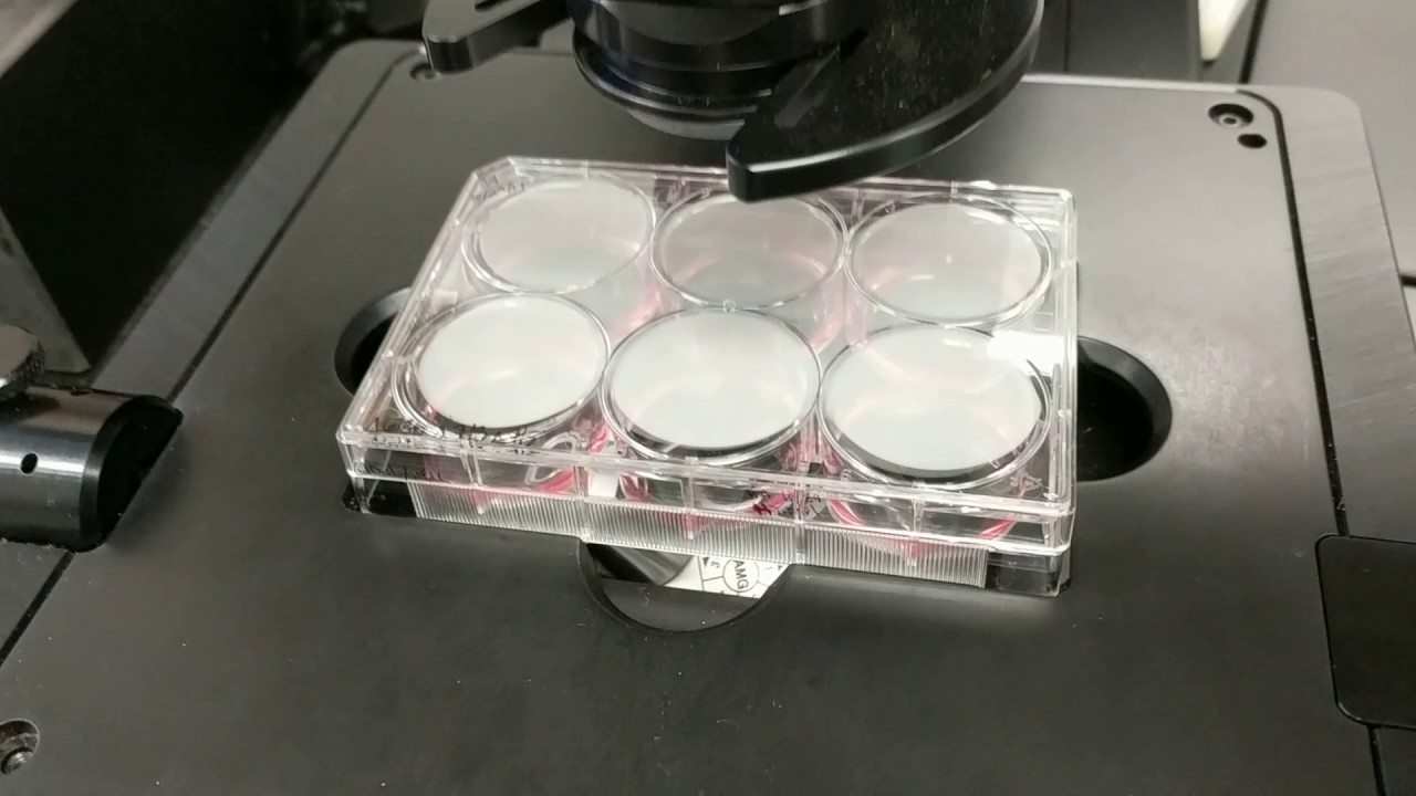 Stem Cell Therapy maxresdefault - Welcome Back to Our Lab: Let's Talk About Mesenchymal Stem Cells