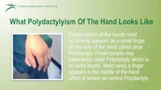 Polydactyly Treatment -