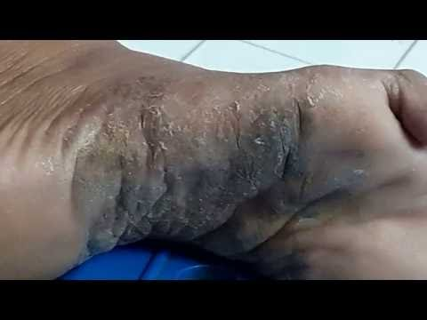 Halamang-singaw sa paanan panahon ng pagbubuntis kaysa sa pagalingin