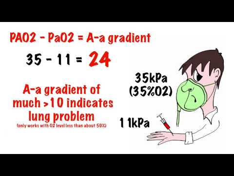 Arterial Blood Gas Interpretation In 5 Min Mp3