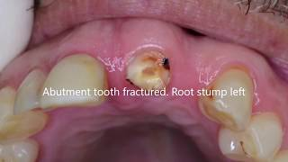 Immediate dental implant placement and cantilever bridge