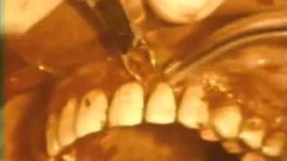 Gingivectomy Procedure to Eliminate Suprabony Pockets