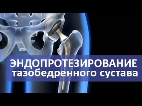 Эндопротезирование тазобедренного сустава. Операция эндопротезирования тазобедренного сустава.