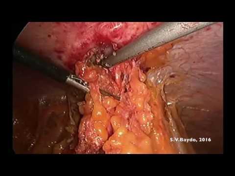 Laparoskopowe całkowite wycięcie mezorektum + hernioplastyka IPOM