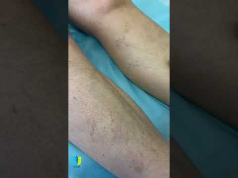 Trăiți un videoclip minunat despre varicoză
