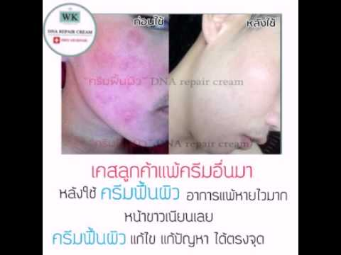 UB โรคสะเก็ดเงิน arthropathic