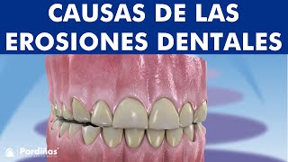 Abfracción, atrición y abrasión dental y otros problemas de desgaste ©