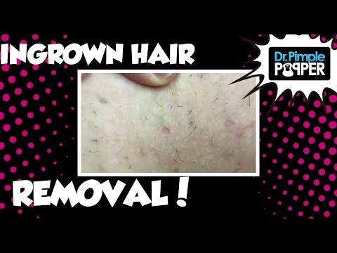 Removing Ingrown Hairs