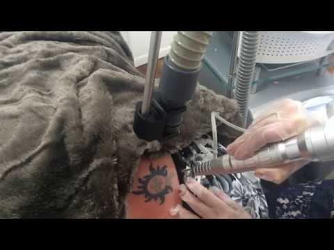 Laserowe usuwanie tatuażu