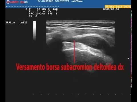 Luso dei baffi doro con osteoartrosi del ginocchio