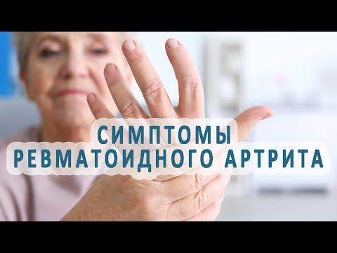 По каким симптомам определяют ревматоидный артрит?