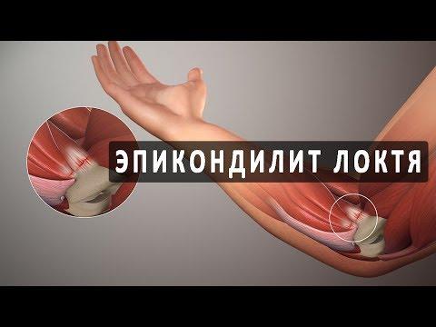 И борщенко как избавиться от боли в суставах рук