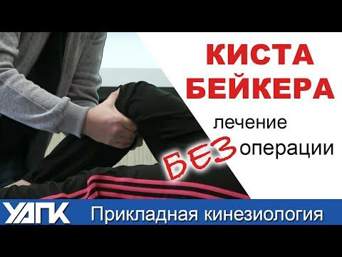 Нарушение статики шейного отдела позвоночника у детей
