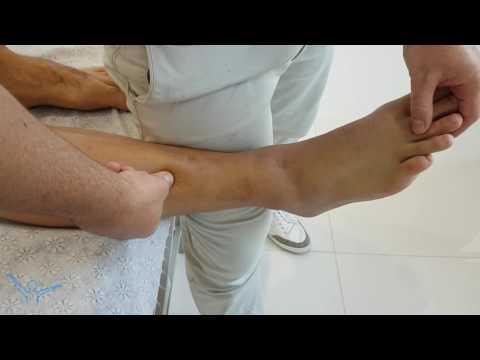 Ból o opinie kości stóp