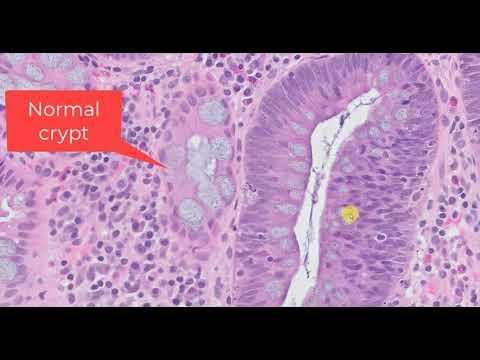 Bacterial prostatitis causes
