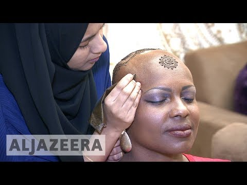 Woman celebrates baldness with Henna